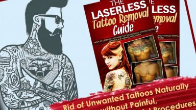 The Laserless Tattoo Removal Guide Get Rid of Unwanted Tattoo