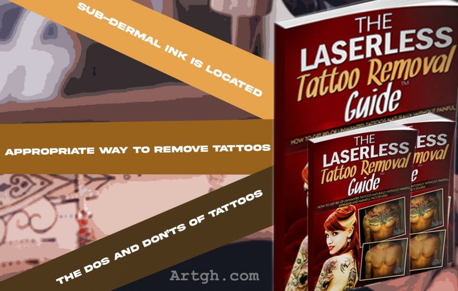 The Laserless Tattoo Removal Preview of Product